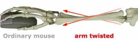 pronation of upper arm